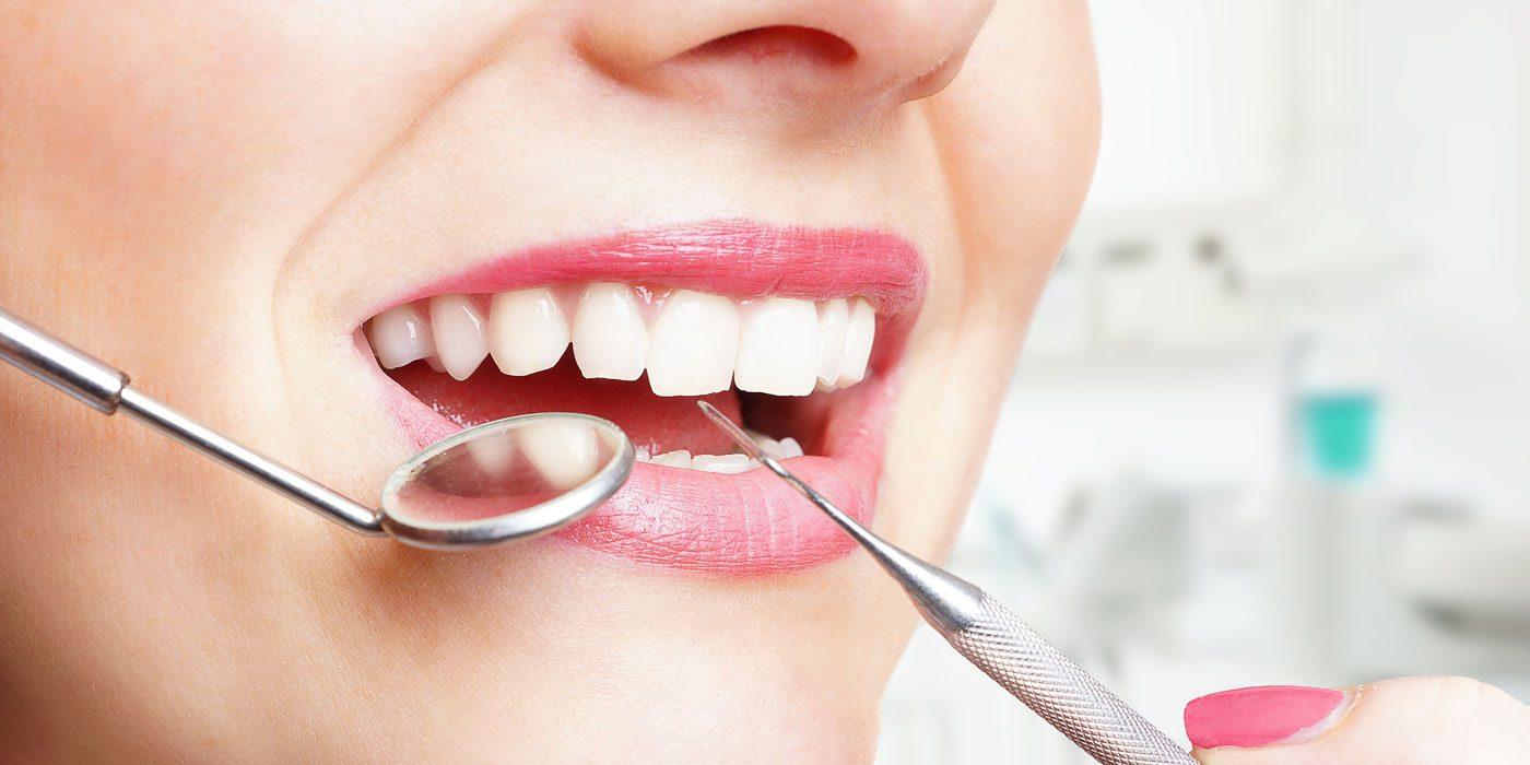 Zahnarzt Wennigsen Karies